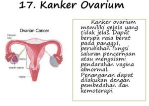 Kelainan dan Penyakit Pada Organ Reproduksi Wanita
